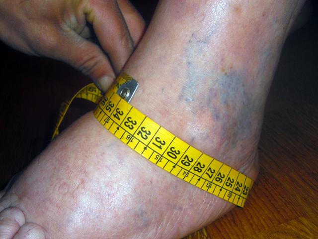 Medidas zapato ortopédico