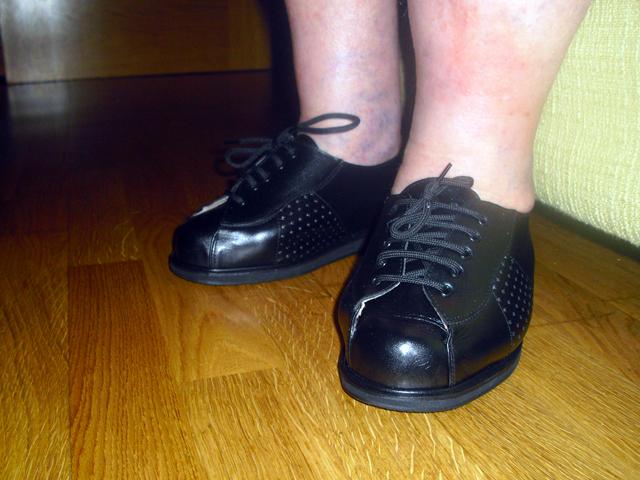 Zapato Ortopédico final