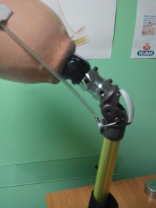 Colocación de prótesis femoral
